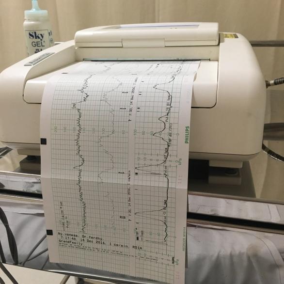 fungsinya CTG buat memantau grafik kontraksi, denyut jantung baby dan ibu